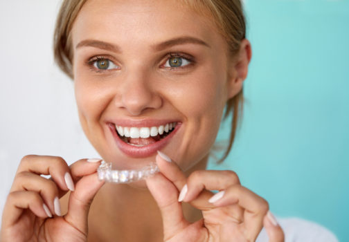 Important Things To Keep In Mind To Get The Best Dental Whitening Result